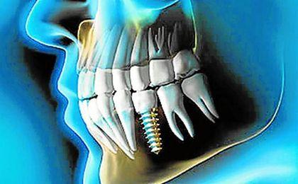 Implantes dentales y el deporte