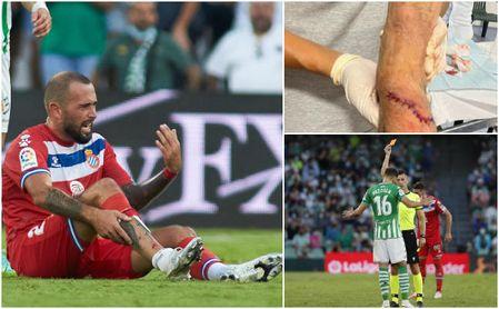 """Aleix Vidal analiza la entrada de Pezzella y afirma que sí llevaba protección: """"La herida la habría sufrido igual"""""""